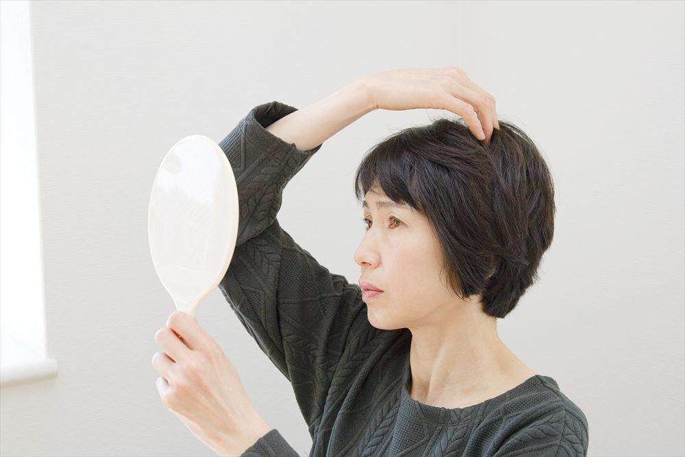 女性の薄毛の特徴